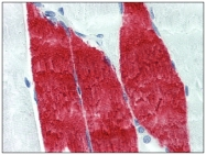 AM20394PU-N - Skeletal muscle Troponin I