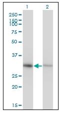 AM20403PU-N - Annexin A4 / ANXA4
