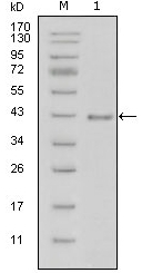 AM20428SU-N - Laminin beta-1 / LAMB1