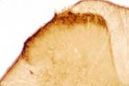 20078 - Cholecystokinin / CCK8  + Gastrin
