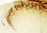 24112 - CGRP / CALCA