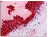 AM20543PU-N - Kallikrein-3 / PSA / KLK3