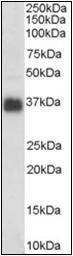 AP22475PU-N - Apolipoprotein J / Apo J