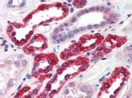 AP22476PU-N - GGA3