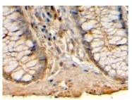 AP23217PU-N - Histamine H1 receptor
