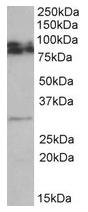 AP23233PU-N - GPM6A