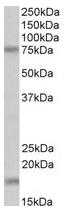 AP23236PU-N - Transglutaminase-7 (TGM7)