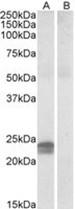 AP23070PU-N - HMGA1 / HMGIY