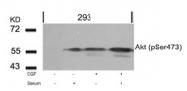 AP02353PU-S - AKT1 / PKB