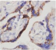 AM20627PU-N - Chorionic Gonadotropin (hCG)