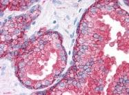 AM20576PU-N - CD9