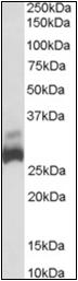 AP22481PU-N - SDHB