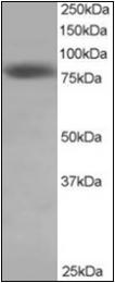 AP22482PU-N - NDC80