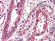 AP22486PU-N - CENP-F