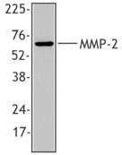 AM20566PU-M - MMP-2