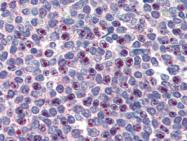 AP22489PU-N - FOXC1 / FKHL7 / FREAC3