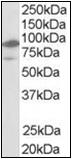 AP22491PU-N - NR1H2