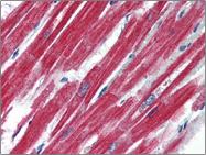 AP22503PU-N - CD295 / Leptin Receptor