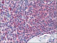 AP22504PU-N - Catalase