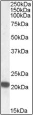 AP22513PU-N - Ferritin heavy chain (FTH1)