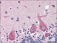 AP22514PU-N - GAD1 / GAD67
