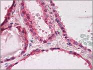 AP22516PU-N - PAFAH1B1 / LIS1