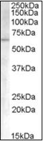 AP22507PU-N - Activin receptor type 1 / ACRV1