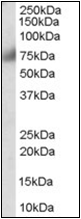 AP22518PU-N - FGFR1