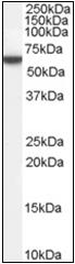 AP22521PU-N - Perilipin-1