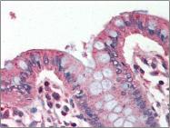 AP22522PU-N - Perilipin-1