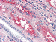 AP22524PU-N - Coagulation factor XII (F12)