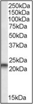AP22528PU-N - PEBP1 / RKIP