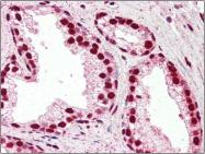 AP22529PU-N - IRF6