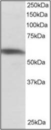 AP22533PU-N - PTBP1 (PTB)
