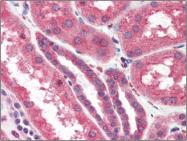 AP22536PU-N - IP3 receptor 2 / ITPR2