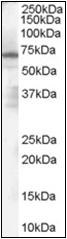 AP22537PU-N - PARP2