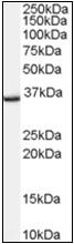 AP22540PU-N - TSPO / BZRP