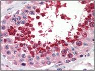 AP22541PU-N - Glutathione peroxidase 4 / GPX4