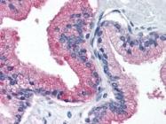 AM20523PU-N - Beta-2-microglobulin