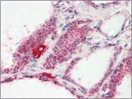 AP22551PU-N - COX IV isoform 1