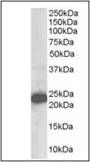 AP22555PU-N - Stathmin-2 / STMN2