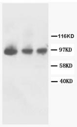 AP23313PU-N - CD332 / FGFR-2