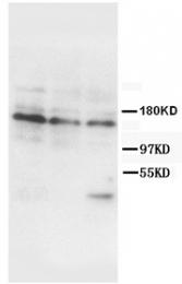 AP23343PU-N - CD220 / INSR