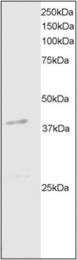 AP22565PU-N - DAPK2 / DRP-1