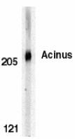 AP22851PU-N - Acinus / ACIN1