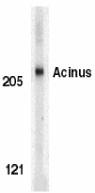 AP22852PU-N - Acinus / ACIN1