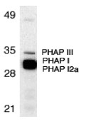 AP22856PU-N - ANP32A