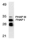 AP22857PU-N - ANP32A