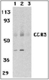 AP22847PU-N - CD193 / CCR3