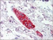 AP22574PU-N - Zygin-1